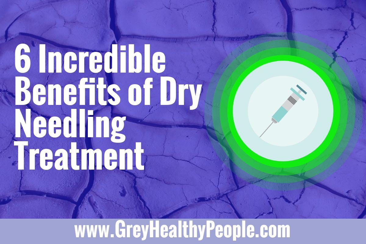 benefits of dry needling