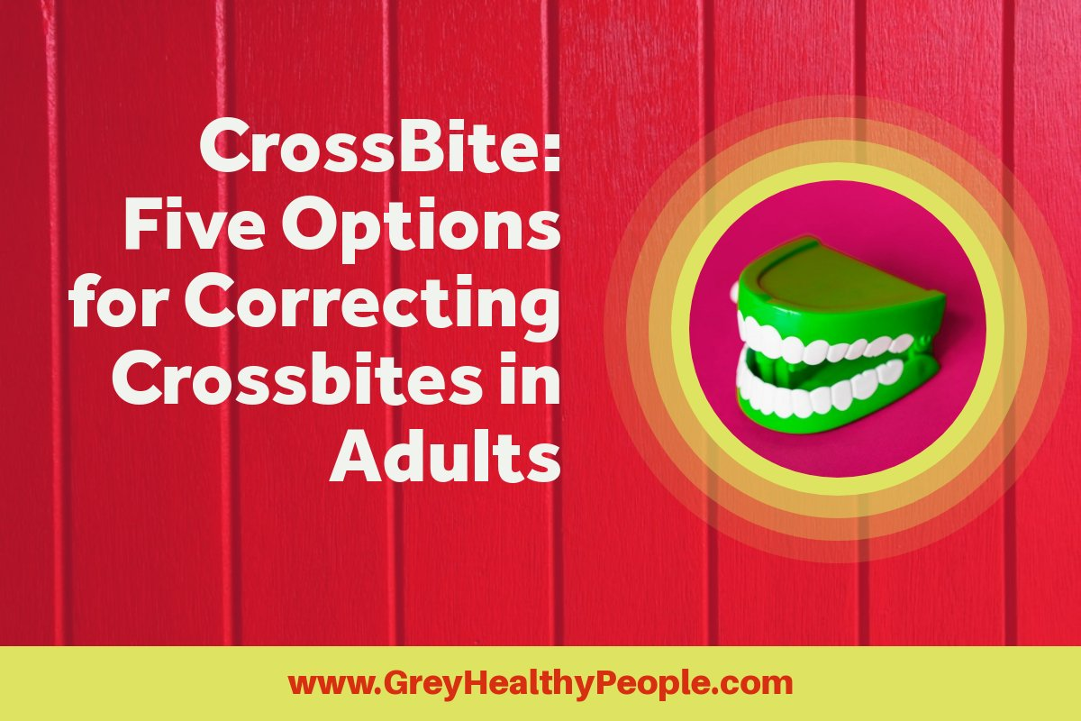 Crossbite corrections in adults